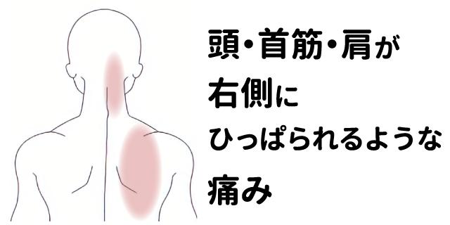 痛い 首 が 突然、首に激痛が… コレはもしかして「ぎっくり首」!?