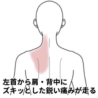 首肩から背中にかけての痛み | ゐろは鍼漢院:我孫子の鍼灸